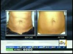 Exilis body shaping Before and after